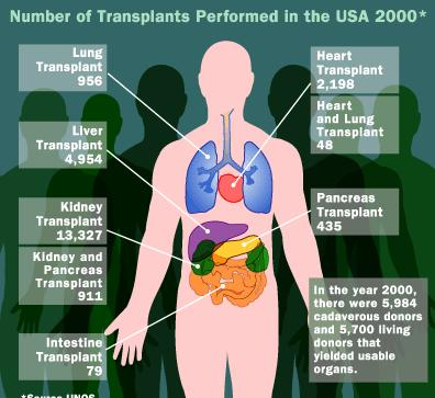 1 Number of Transplants performed in USA 2000