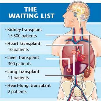 1 Organ donation waiting list