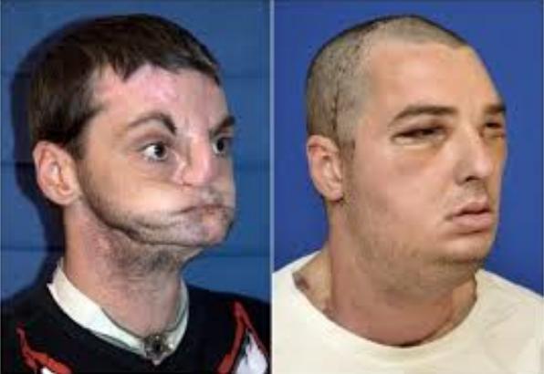 10d Face transplantation