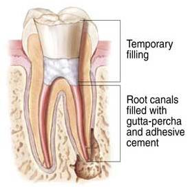 2 Gutta Percha used for root canal treatment SKMClasses