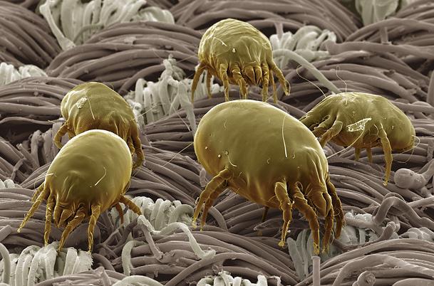 4 Dust mites in skin