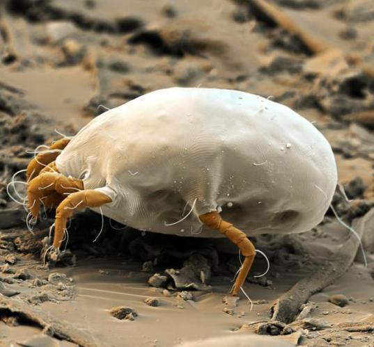 25 Photograph of Dustmites