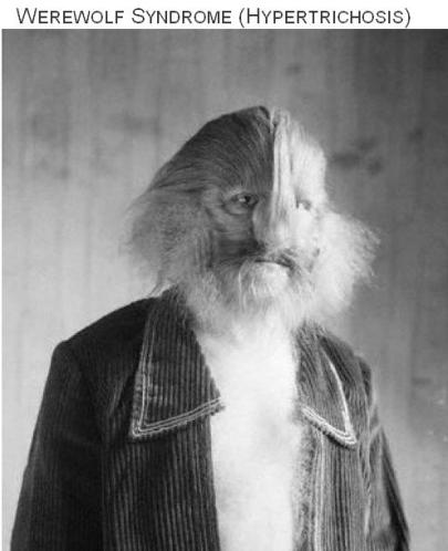 Werewolf Syndrome Hypertrichosis