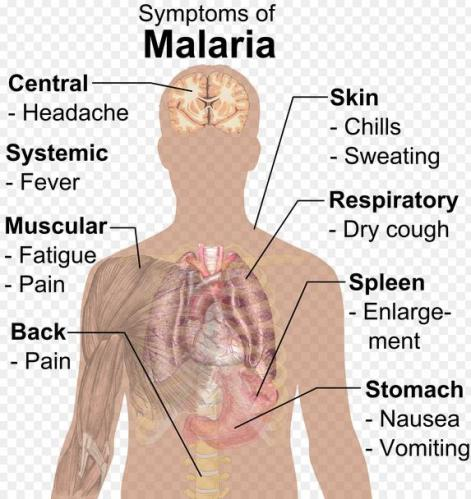 16 Symptomps of Malaria